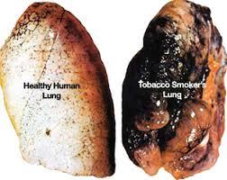 Hookah Lungs